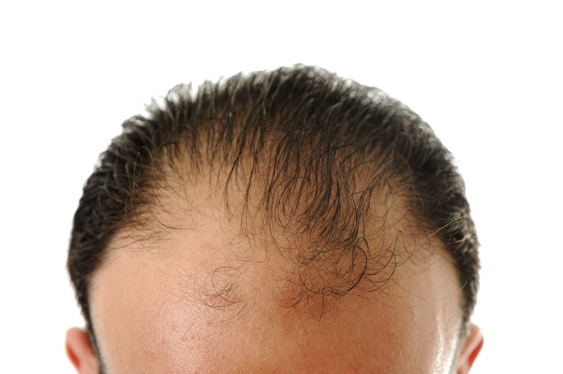 ALOPECIA: Symptoms, Causes and Homeopathy Treatment